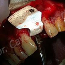 caso 1: rigenerazione ossea