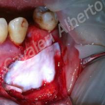 caso 2: rigenerazione ossea